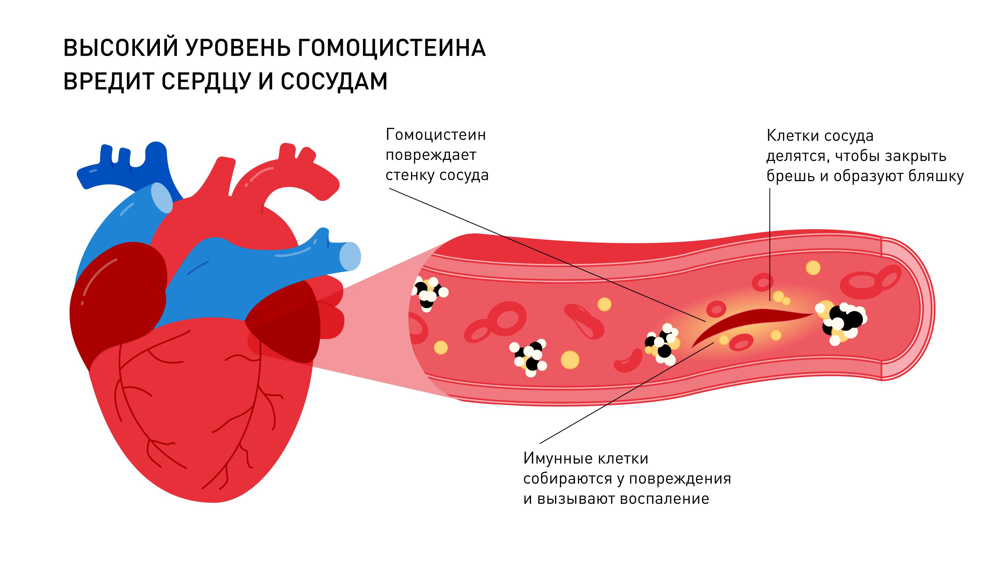 Сердце и сосуды: влияние гомоцистеина