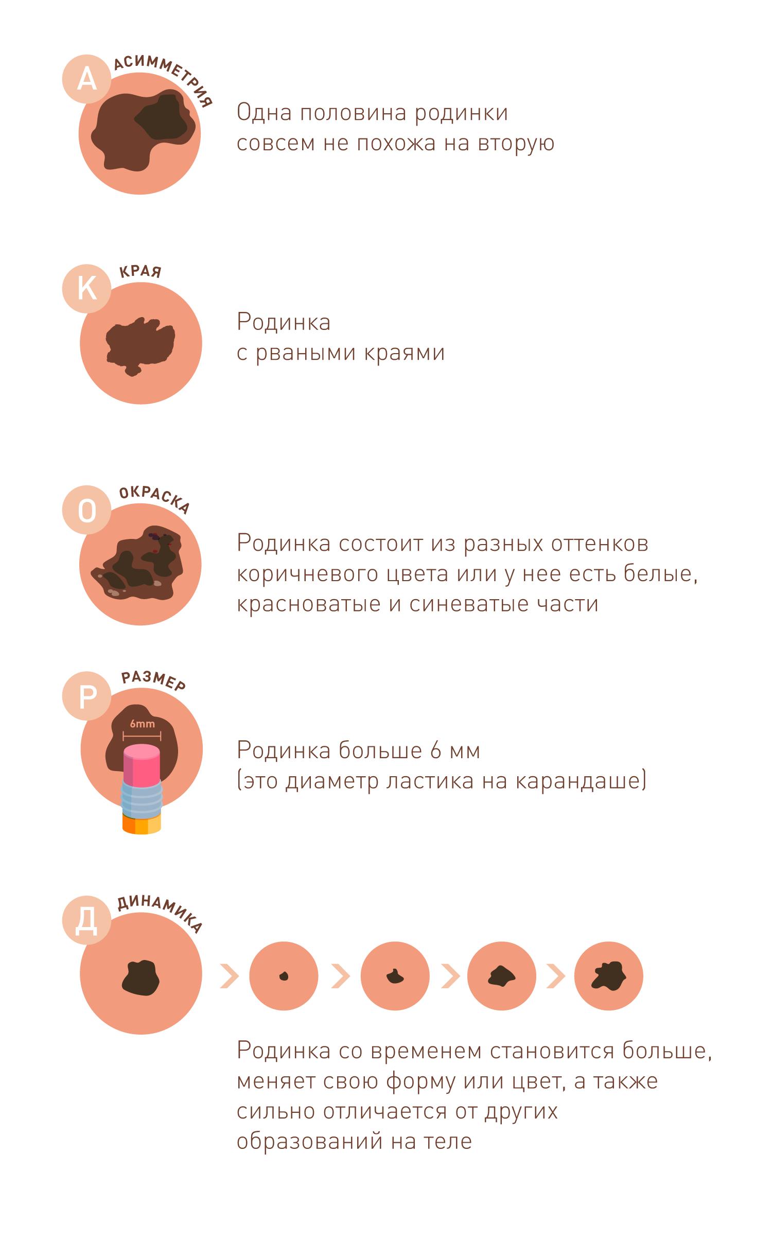 Меланома и родинки: метод самодиагностики и профилактики