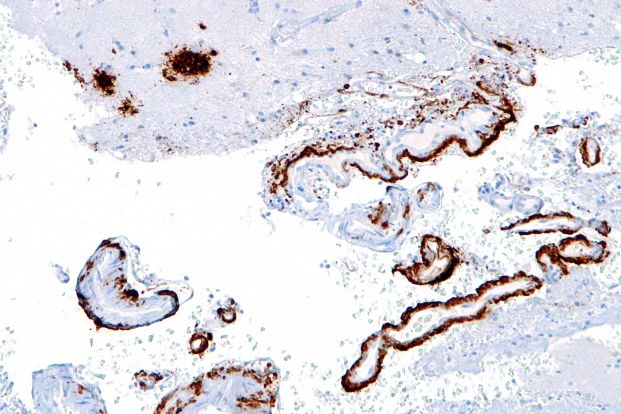 Болезнь Альцгемера возникает из-за амилоидных бляшек: это скопления белка, которые нарушают нормальную работу мозга
