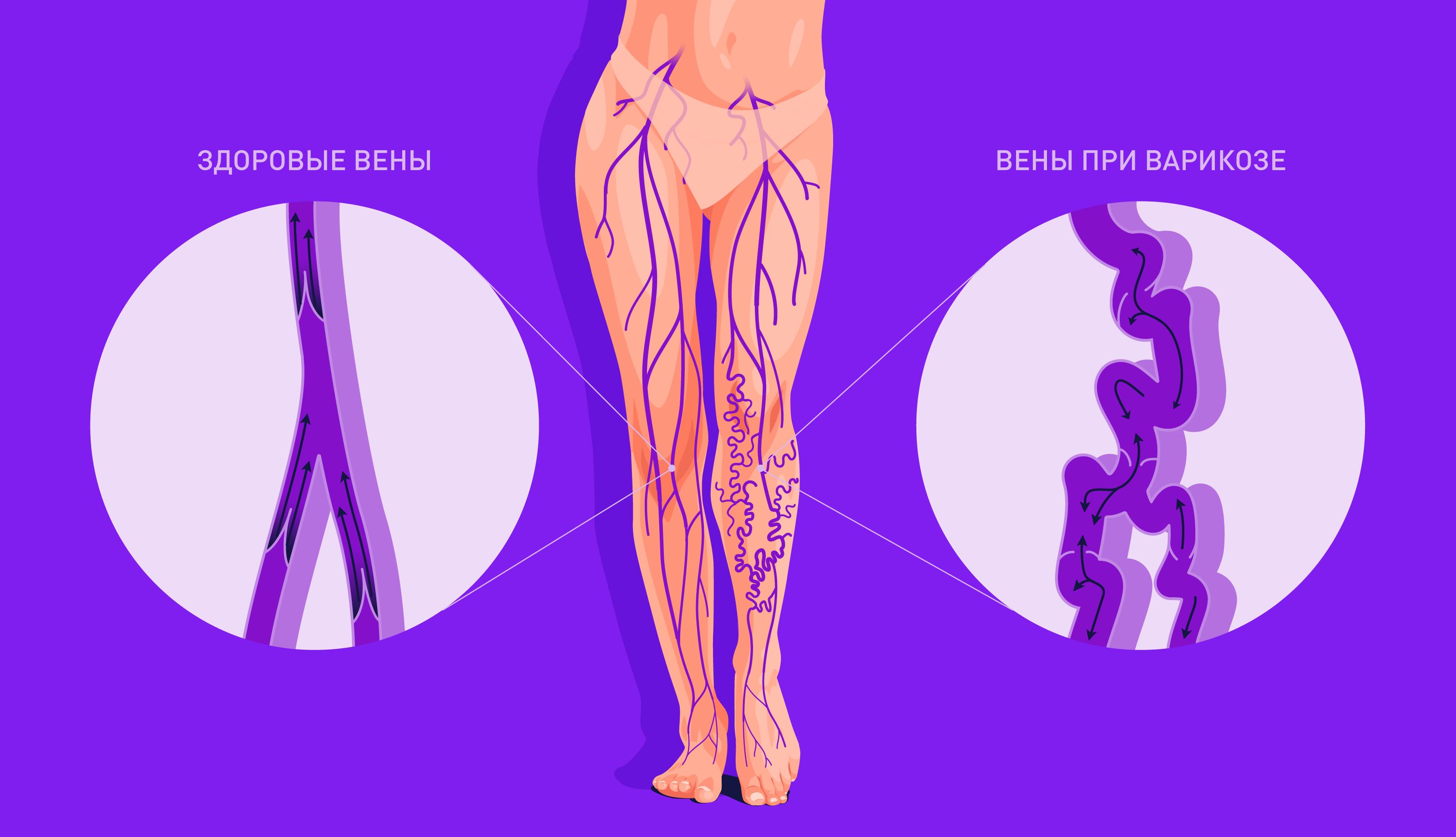Варикоз: симптомы и причины варикозного расширения вен
