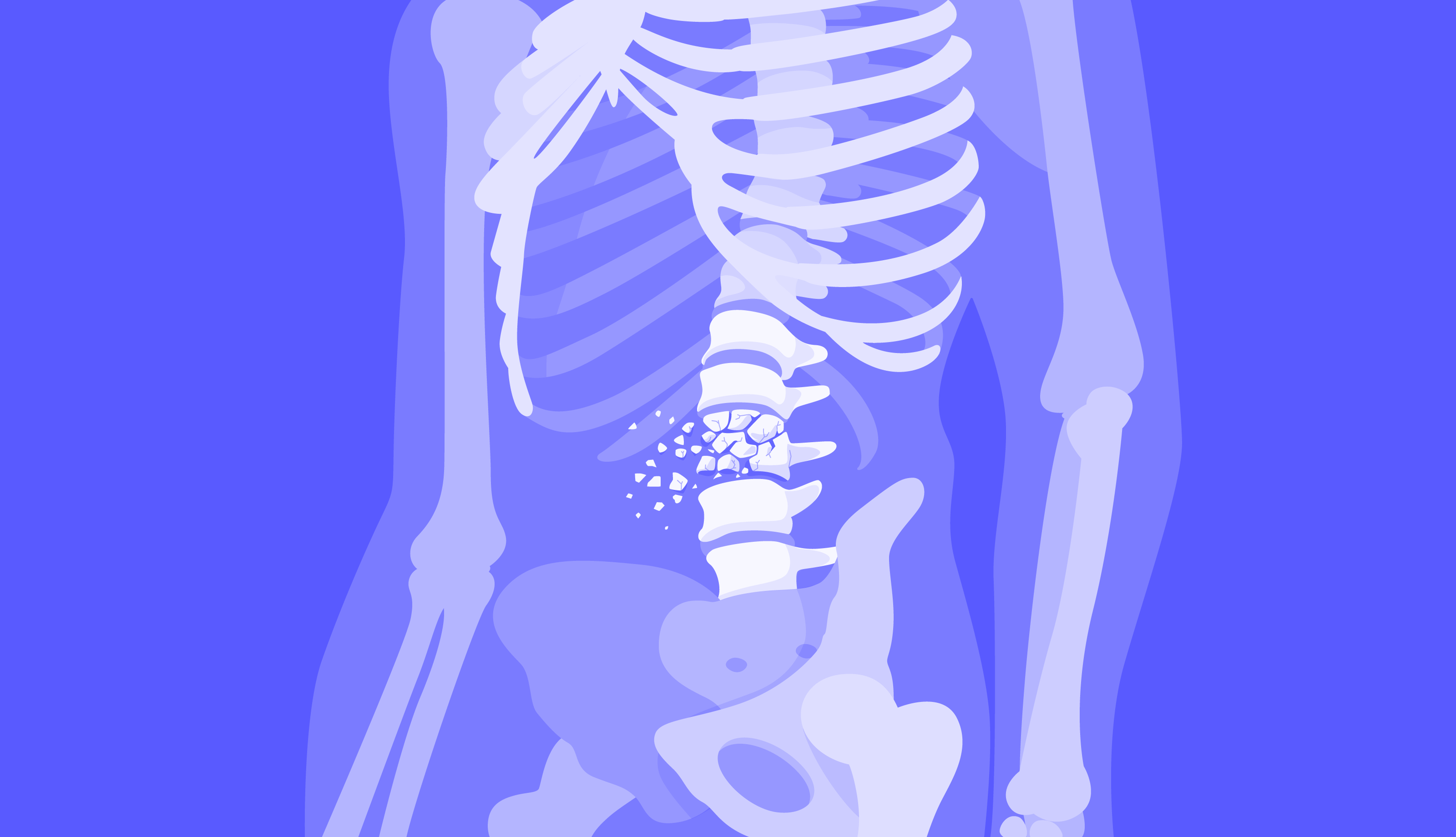 2021-07-09--steoporosis
